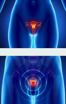Cirugía del aparato genital